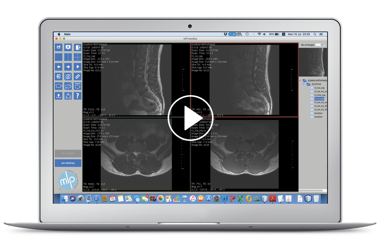 MipviewBox, DICOM viewer, Medical Image Processing